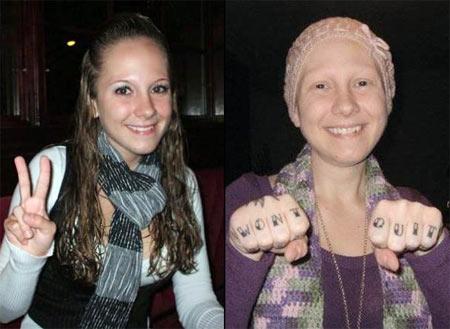 Ashley Anne Kirilow và màn hóa trang giả bệnh ung thư để moi tiền người hảo tâm.