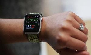 Apple Watch dính lỗi tự khởi động lại